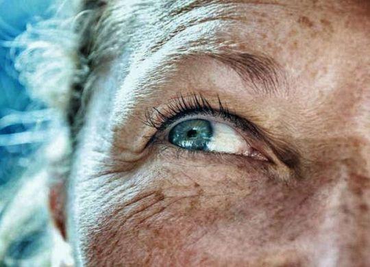 cataracte en 7 questions-min