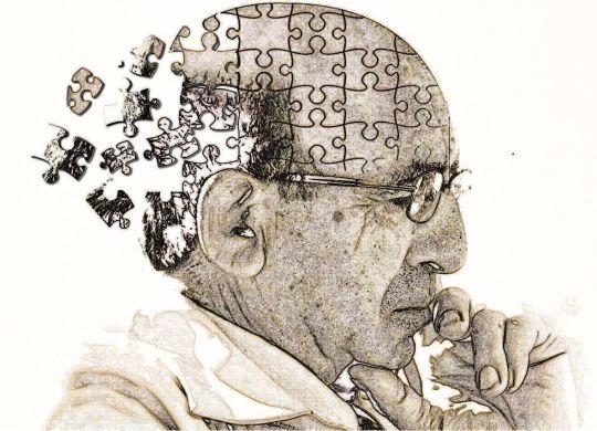 Alzheimer-min