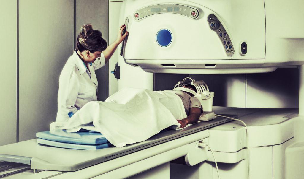 radiothérapie effets