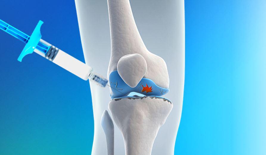 Pratiqué en injection, l'acide hyaluronique soulage l'arthrose
