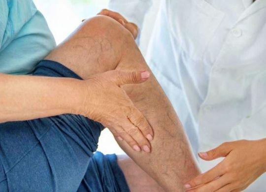 jambes souffrant d'insuffisance veineuse
