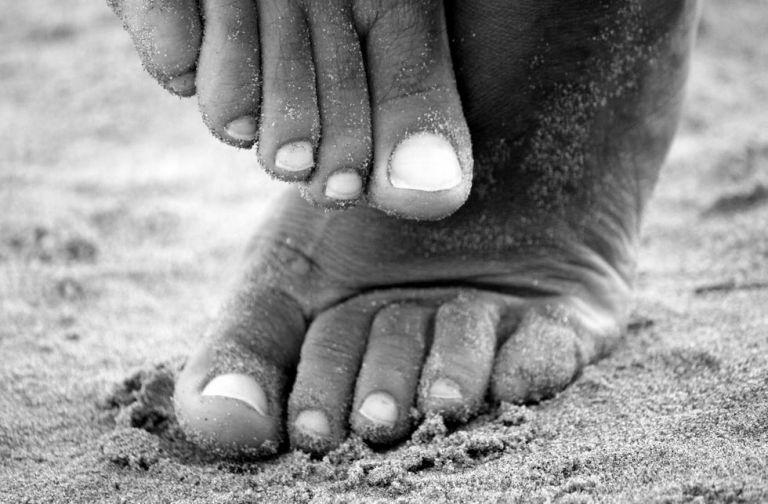 panaris pied