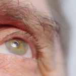 Cancer Oculaire Oeil Senior