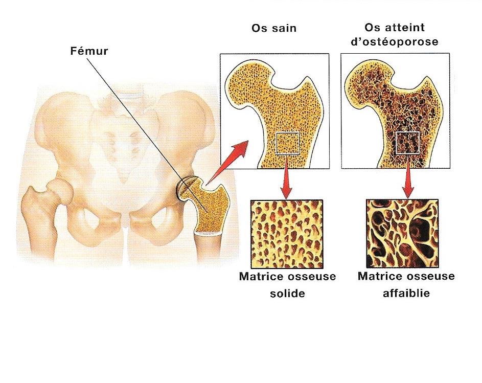 Osthéoposose Shema