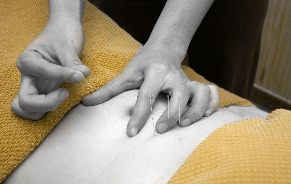 Acupuncture Ventre