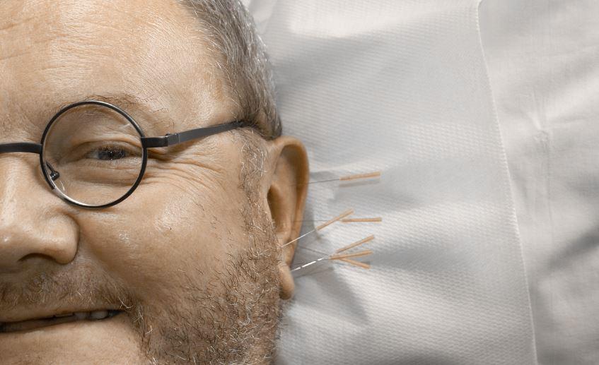 Acupuncture Visage