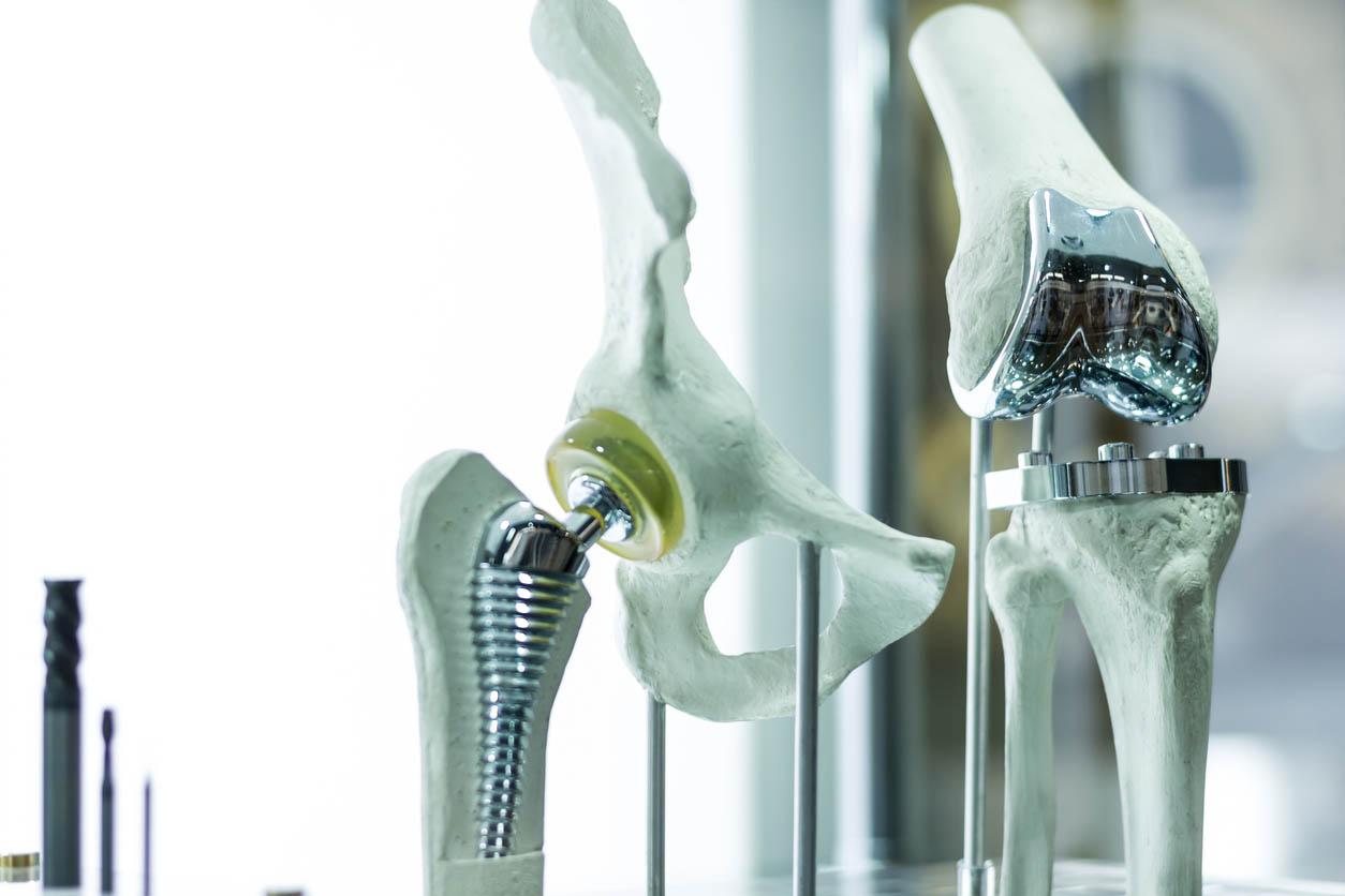 prothese de la hanche