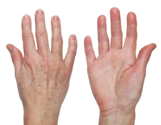 La peau sur la main d'une vieille grand-mère plaie sèche