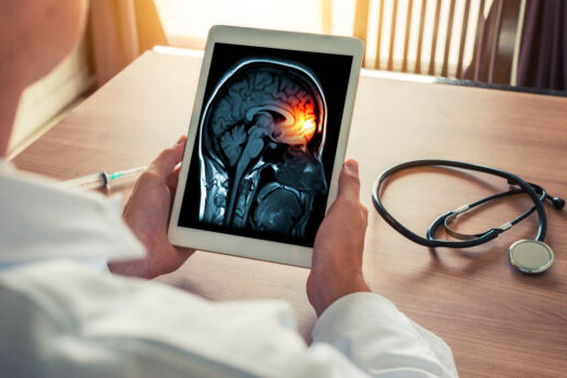 Doctor Holding A Digital Tablet With X Ray Of Brain And Skull Skeleton. Headache, Meningitis And Migraine Concept
