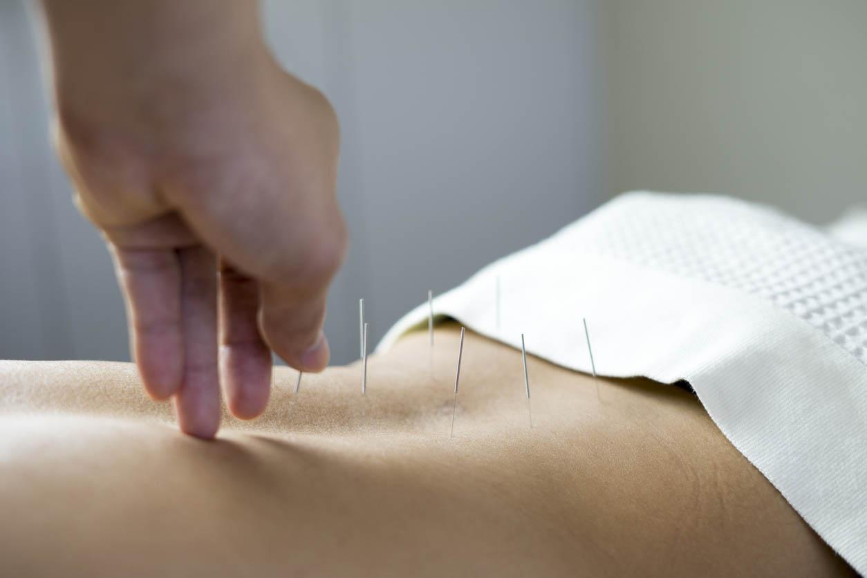 traitement Acupuncture sur le dos