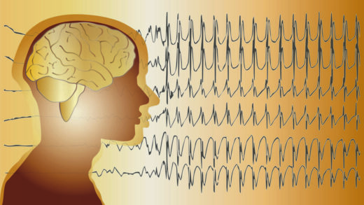 Fond médical cerveau Épilepsie