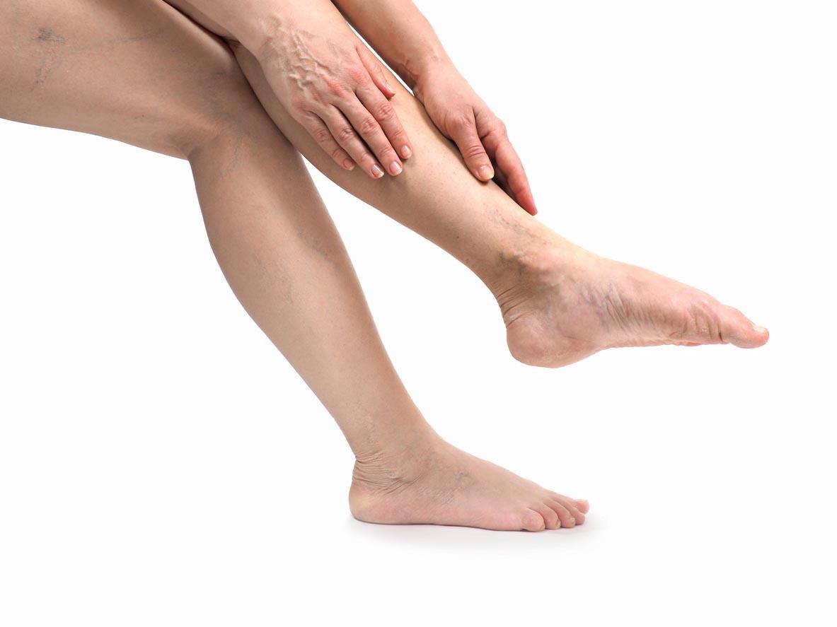 femmes touchant ses jambes lourdes