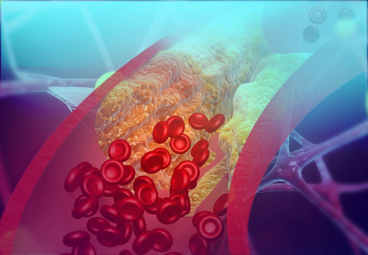 Artère de blocage de cholestérol