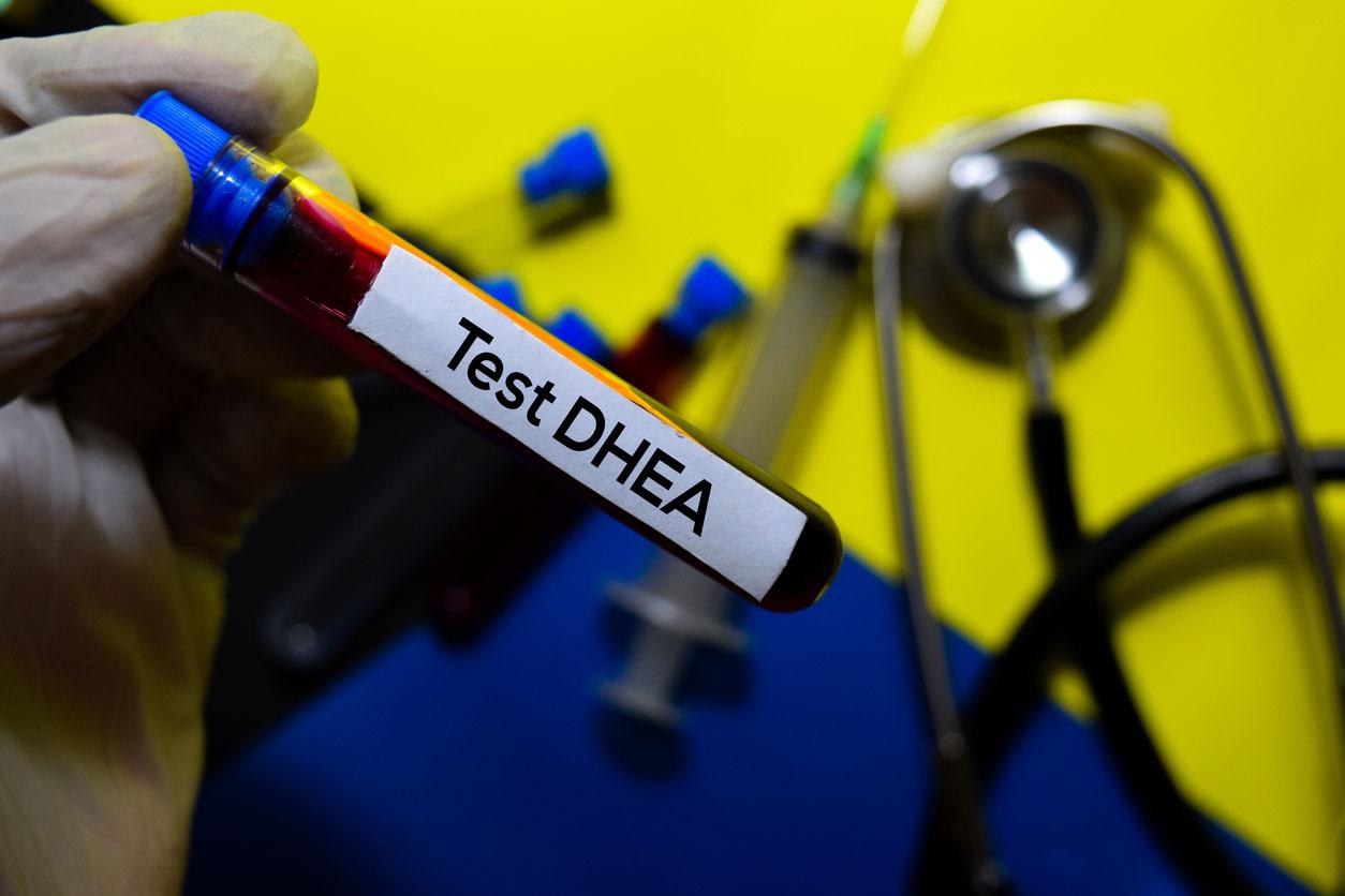 Test Dhea